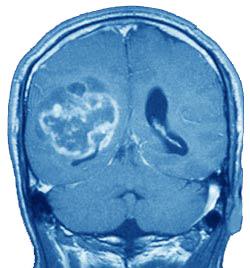 انتقال مولکولهاي جديد به تومورهاي مغزي با فناورين