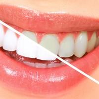علل زرد شدن دندان ها