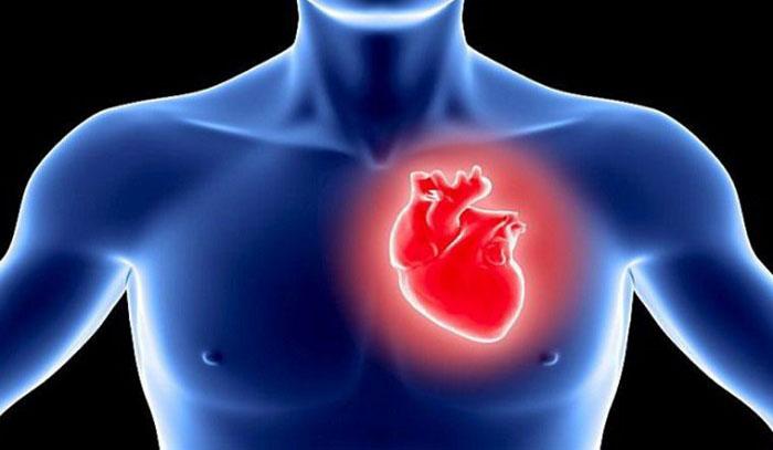 قلب درد عصبی
