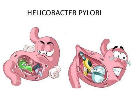 درمان هلیکوباکتر
