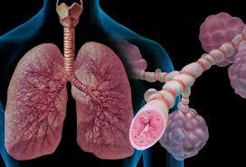 درمان بیماری آسم چیست
