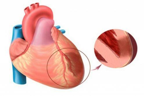 نشانه ها و علائم قلب درد عصبی