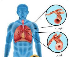 روش درمان آسم عصبی